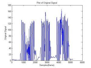سیگنال اولیه مورد بررسی با شبکه عصبی min 300x225 شناسایی با شبکه عصبی   بیماری پارکینسون